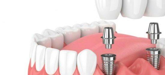 Implante dental fijo y removible - clinica dental molina de aragon