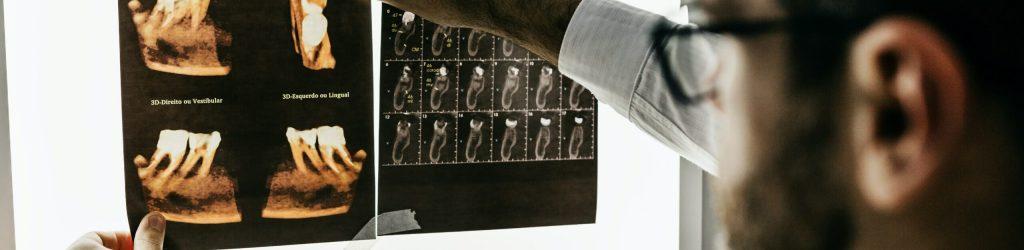 cirugia maxilofacial - clinica dental molina de aragon