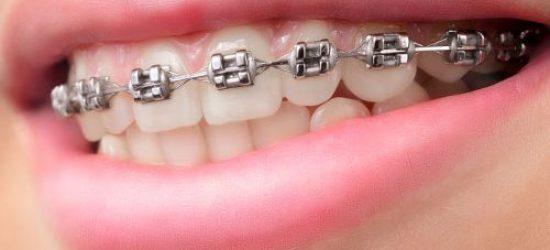 ortodoncia -clinica dental molina de aragon