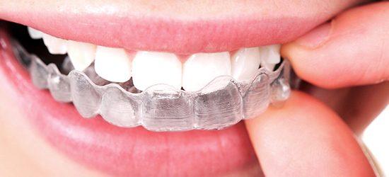 ortodoncia invisible removible invisaling- clinica dental molina de aragon