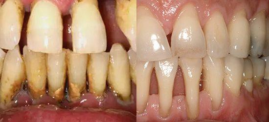 periodontitis - clinica dental molina de aragon